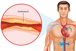 About the Cardiovascular Disease Risk (APOE) DNA Test